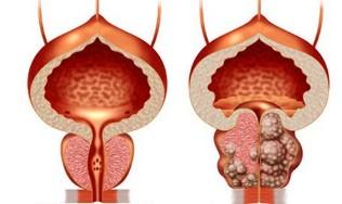Prostatit mint anesztézia